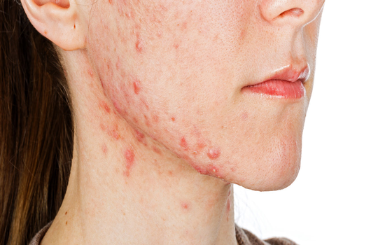 Tips for treating acne from a pediatric dermatologist