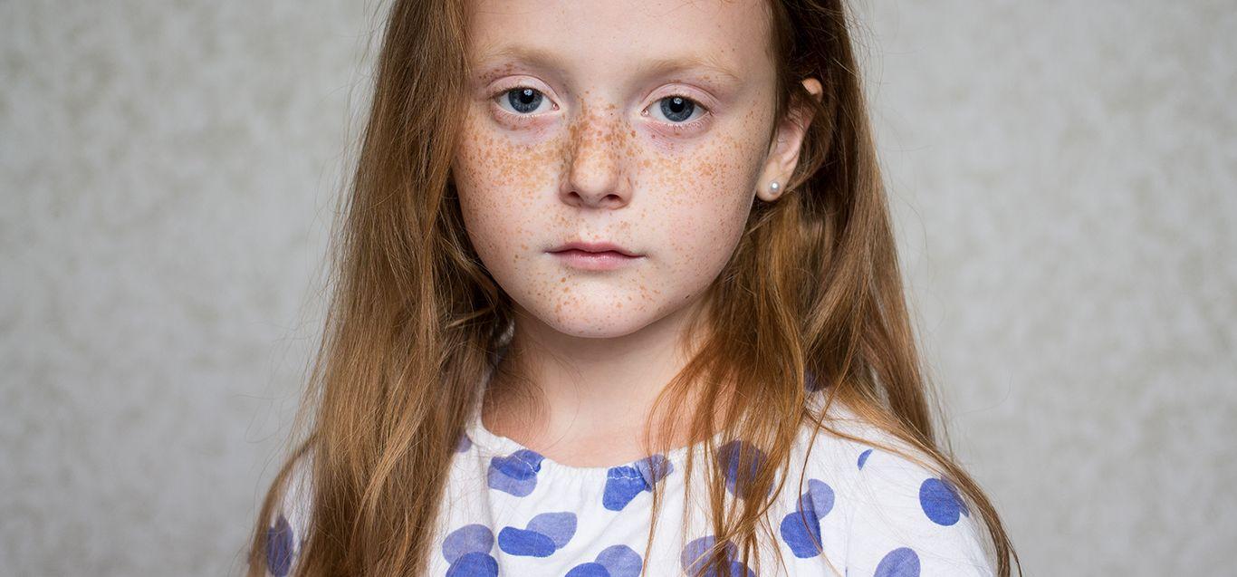 Lazy eye: When to treat - Le Bonheur Children's Hospital